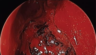 Endoscopic view of the left nasal cavity.