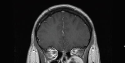 Coronal T1 post contrast MRI demonstrating the left sided schwannoma centered within the pterygopalatine fossa. Inferior orbital compression is demonstrated.