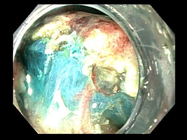 Submucosal dissection is aided by injection of fluid with methylene blue.