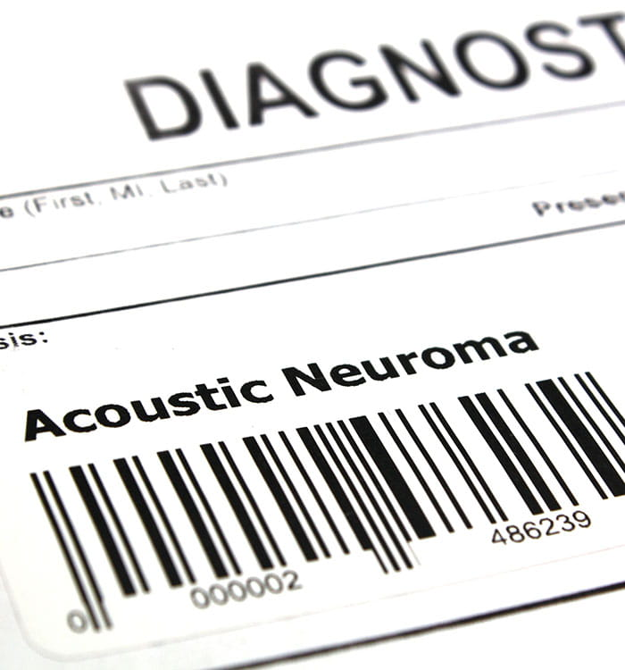 Acoustic Neuroma Diagnosis image