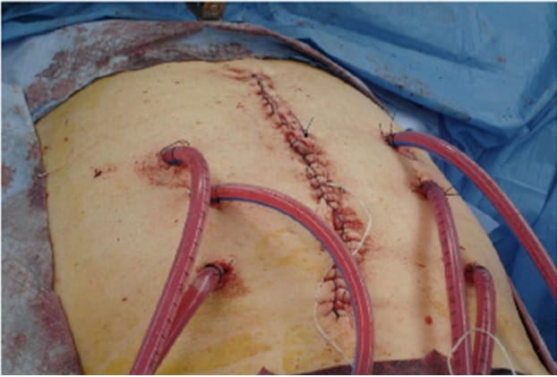 HIPEC intraoperative set-up a the time of interval debulking for advanced ovarian cancer
