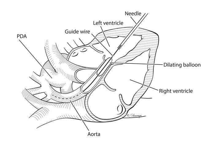 Schematic demonstrating the technique used to open the aortic valve in utero in the setting of severe aortic stenosis and impending HLHS.