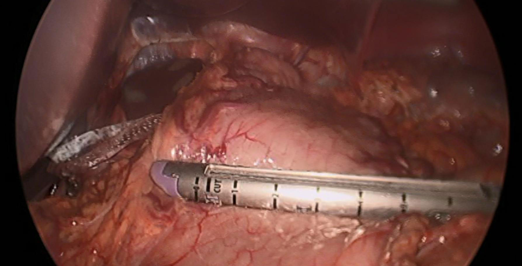 Laparoscopic view of a surgical stapler on the stomach