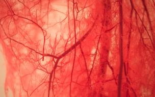 Vascular Conditions