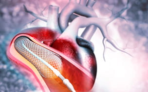 Heart Attack and Stents