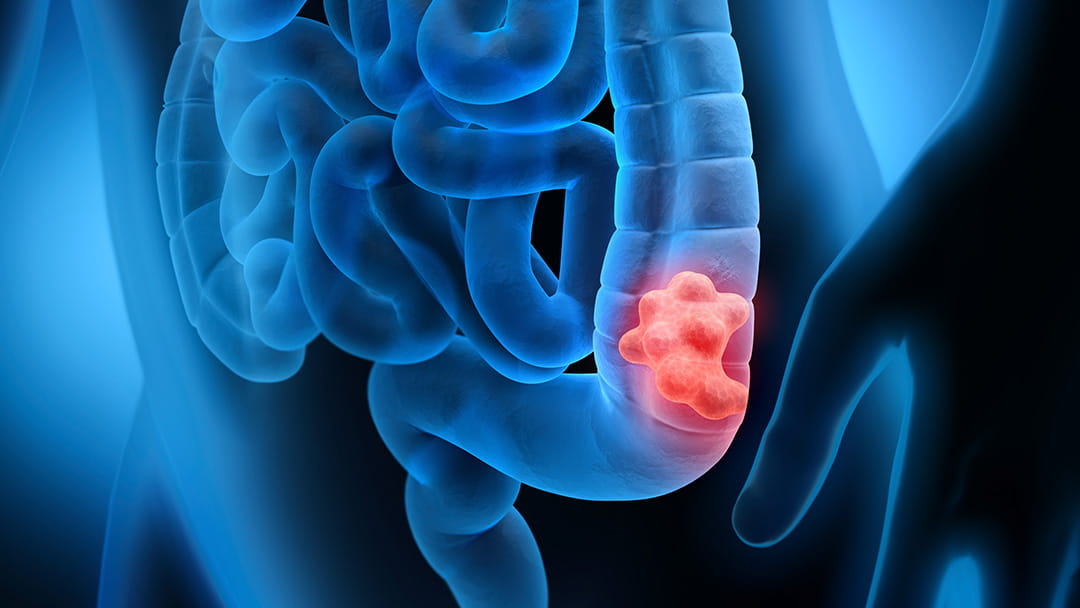 How To Stop Colon Cancer In Its Tracks