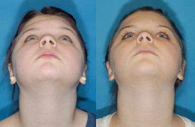 Removal of Fibrous Dysplasia of Brow and Left Supraorbital Region