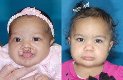 Patient started with Nasal Alveolar Molding (NAM), then proceeded with first surgery: Bilateral Cleft Lip Adhesion followed by second Cleft Lip and Cleft Rhinoplasty