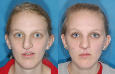 Abbe Flap, Cleft Septorhinoplasty (left image pre-op; right image post-op)