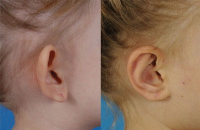 Bilateral Otoplasty (right cheek view close-up; left image pre-op; right image post-op)
