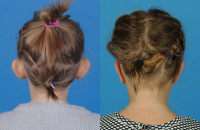 Bilateral Otoplasty (back of head view; left image pre-op; right image post-op)