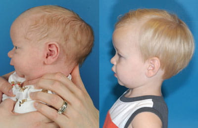 Craniosynostosis (left full cheek view; left image younger and pre-op; right image older and post-op)