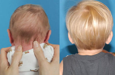 Craniosynostosis (back of head view; left image younger and pre-op; right image older and post-op)