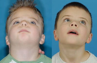 Left Unicoronal Synostosis Cranial Vault remodeling at infancy followed by Bilateral Contouring of Forehead (left image pre-op; right image post-op)
