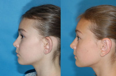 Bilateral Otoplasty (full left cheek view; left image pre-op; right image post-op)