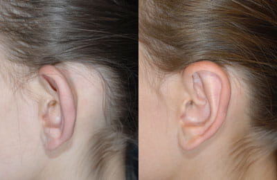Bilateral Otoplasty (close-up left ear view; left image pre-op; right image post-op)