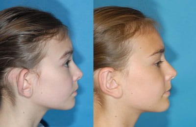 Bilateral Otoplasty (full cheek right ear view; left image pre-op; right image post-op)