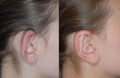 Bilateral Otoplasty (close-up right ear view; left image pre-op; right image post-op)
