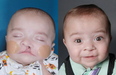 Unilateral Cleft Lip (left image pre-op; right image post-op)