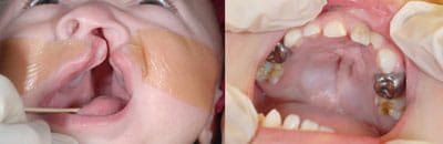Cleft Palate Repair (left image pre-op; right image post-op)