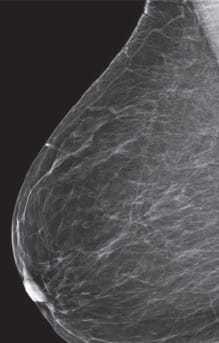 Breast Density Almost Entirely Fatty